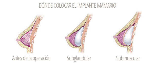 subglandular vs submuscular