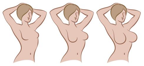 despues de un aumento de senos