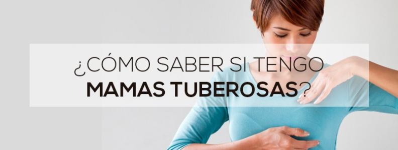 ¿Cómo saber si tengo mamas tuberosas?