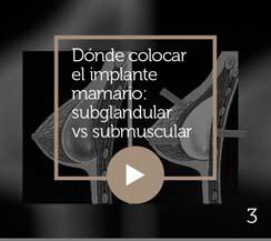 implante mamario