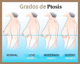 grados pechos caidos ptosis mamaria