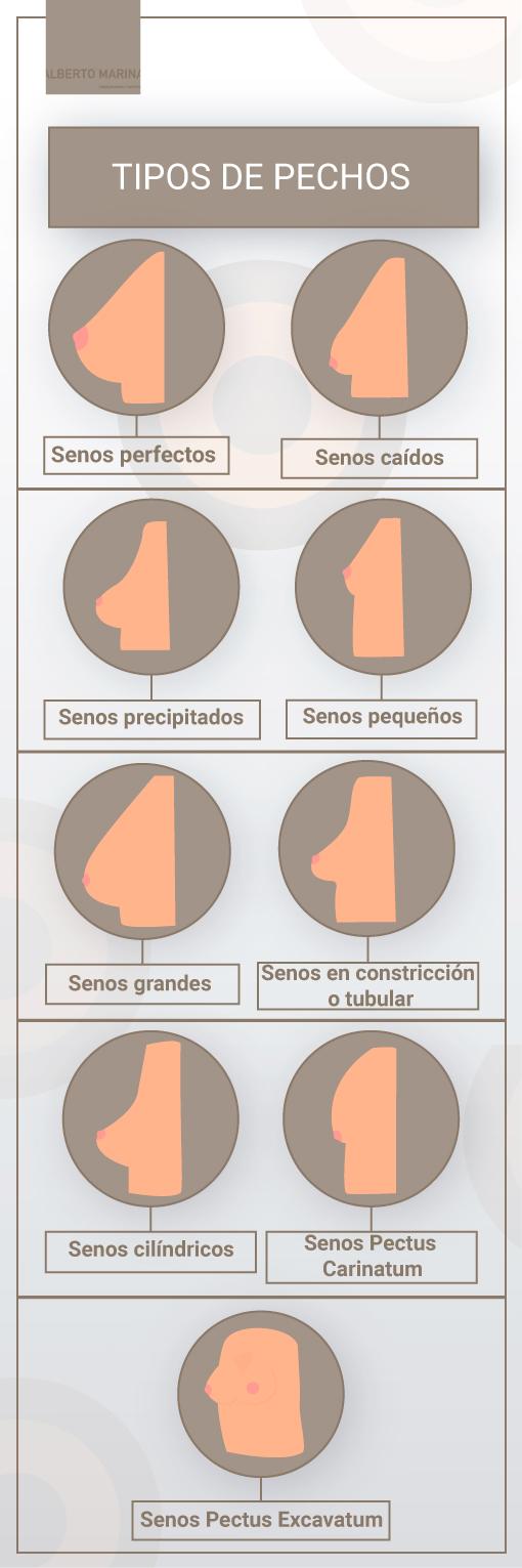 infografía tipos de pechos
