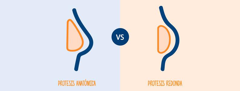 protesis anatomica o redondas