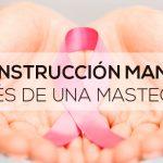 Reconstrucción mamaria después de una mastectomía
