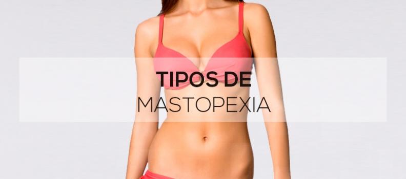 Tipos de mastopexia