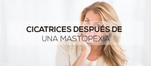 Cicatrices después de una mastopexia